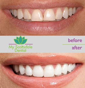 Teeth Whitening Specials On Kits Q A My Scottsdale Dentist